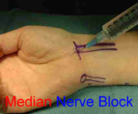 Median Nerve Anatomy Wrist