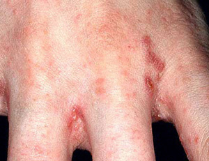 Scabies burrows often found in finger web spaces