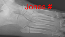 Jones fracture (proximal shaft) 5MT, not base MT
