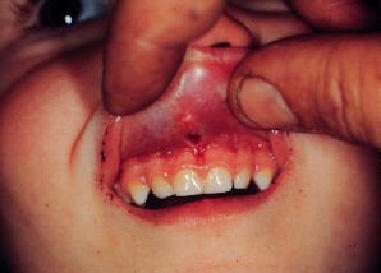 upper lip frenulum injuries